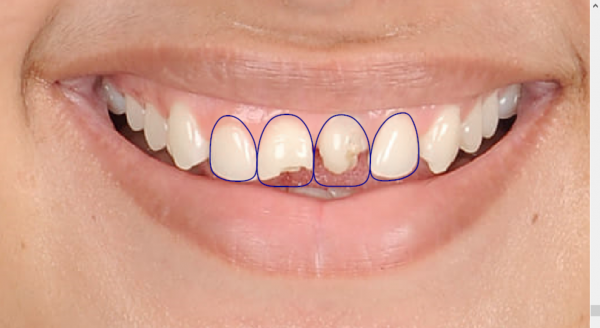 Digital Planning for Crown lengthening and 4 Crowns