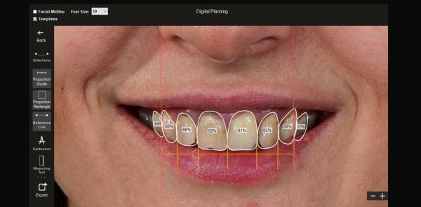 Digital Smile Designing